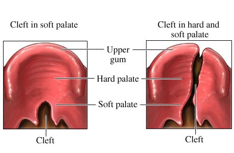 Examples of cleft palate
