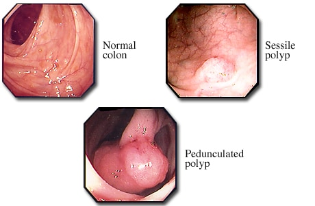 Normal colon and colon polyps
