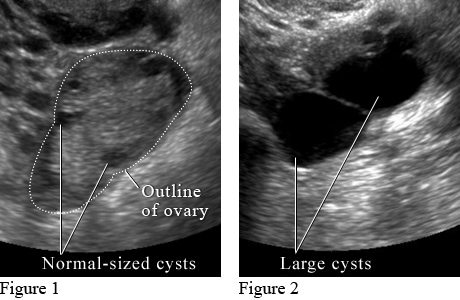 Ultrasound images of ovarian cysts