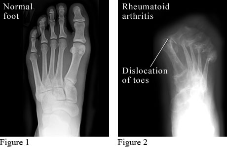 X-ray images of a normal foot and a foot with rheumatoid arthritis