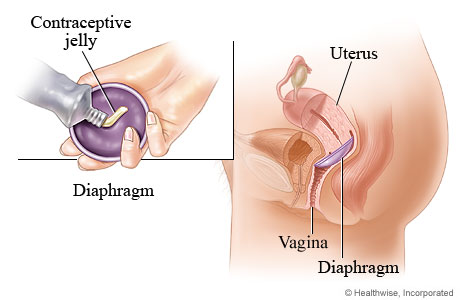 Diaphragm method of birth control