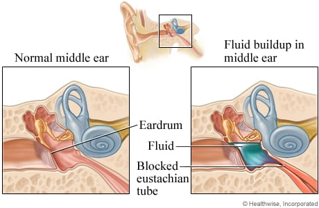 Normal middle ear and fluid buildup in the middle ear