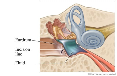 An incision made in the eardrum