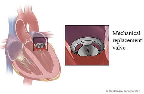 Location of mitral valve in heart and close-up of mechanical replacement valve