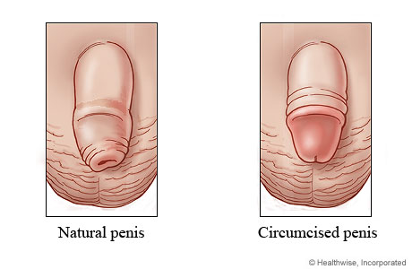 Natural penis and circumcised penis