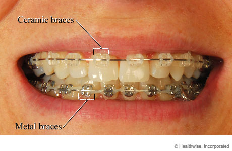 Mouth of someone with braces, showing ceramic braces on top and metal braces on the bottom