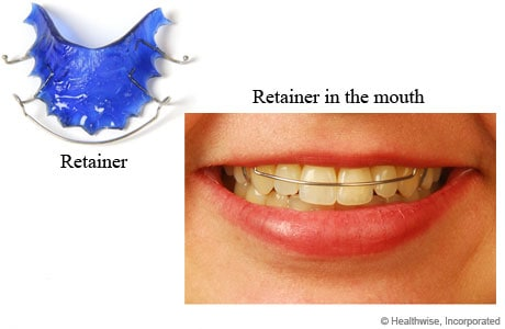 Retainer and photo of retainer in person's mouth