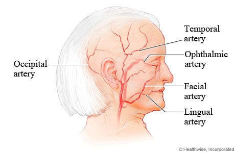 Arteries commonly affected by giant cell arteritis