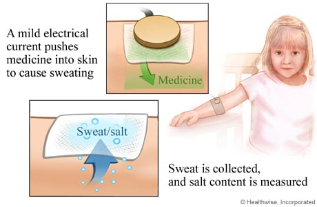 Picture of the sweat test procedure