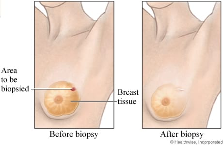 Picture of breast-conserving surgery (lumpectomy)