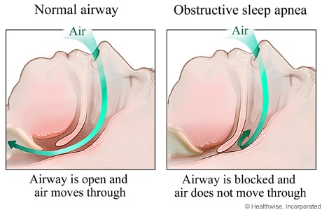 Normal airway and a blocked upper airway (obstructive sleep apnea)