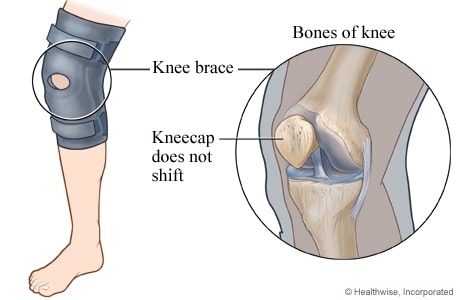 Knee brace to keep the kneecap from shifting