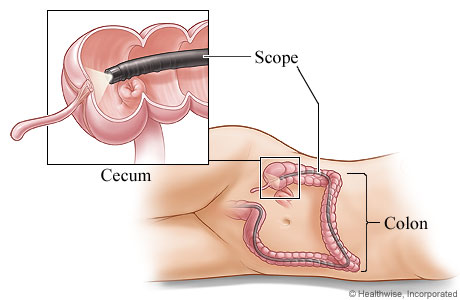 Colonoscope in the colon