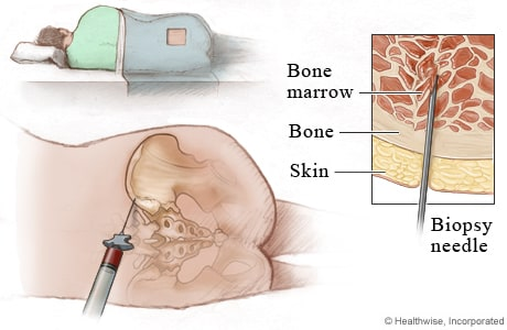 Bone marrow aspiration and biopsy