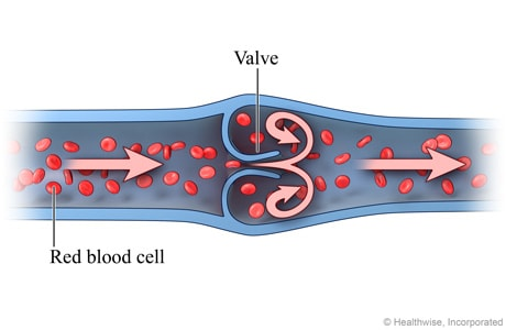 Picture of normal venous blood flow (cross-section)