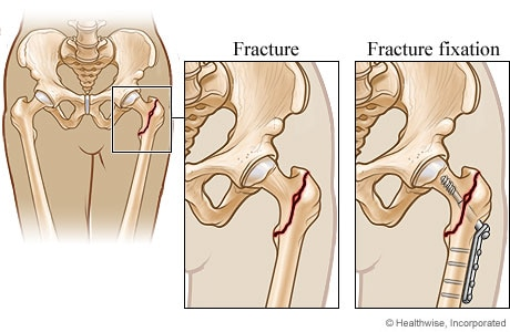 Hip repair for a hip fracture