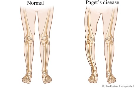 Normal legs and bowed legs from Paget's disease