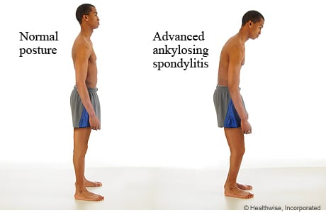 Normal posture compared to the posture of advanced ankylosing spondylitis