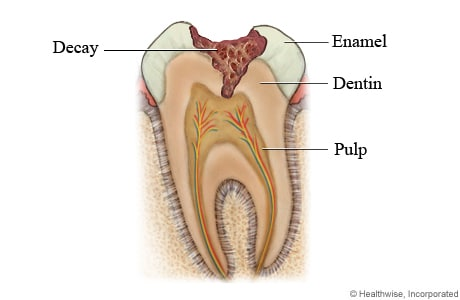 Tooth decay through enamel and into dentin