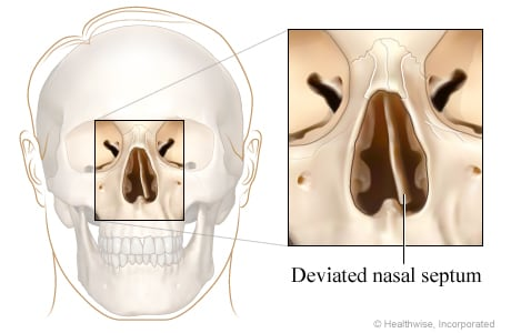 Deviated nasal septum