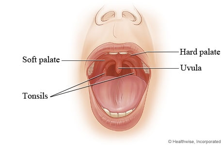 Normal palate