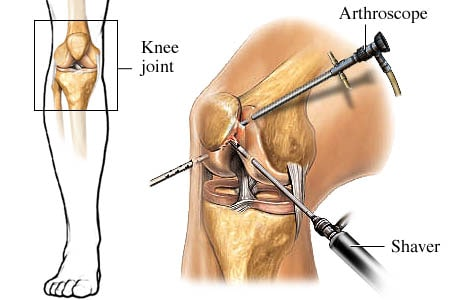 Arthroscopic procedure