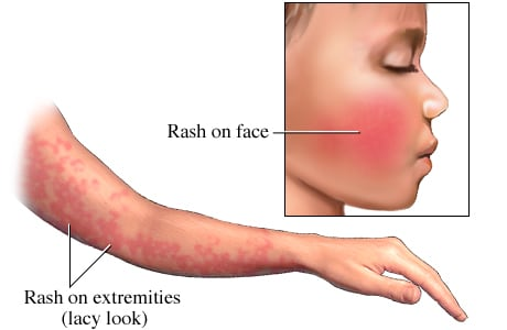 Picture of fifth disease (erythema infectiosum) rash on face and arm