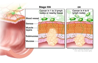 Stage IIIA colorectal cancer; shows a cross-section of the colon/rectum and a two-panel inset. Each panel shows the layers of the colon/rectum wall: mucosa, submucosa, muscle layers, and serosa. Also shown are a blood vessel and lymph nodes. First panel shows cancer in the mucosa, submucosa, muscle layers, and 2 lymph nodes. Second panel shows cancer in the mucosa, submucosa, and 5 lymph nodes.