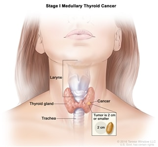 Thyroid Cancer Treatment Pdq Treatment Health Professional Information Nci Skip To The Navigation Health Encyclopedia Kaiser Permanente