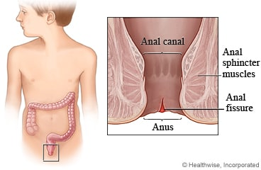 How do you get anal fissures