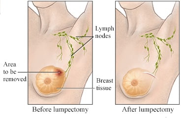 Breast cancer chemo before surgery