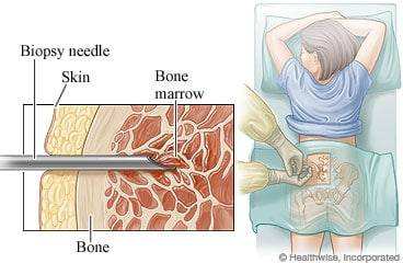 Image result for image of bone marrow biopsy